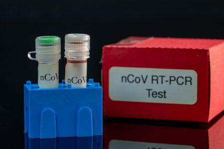 Mit mérnek a koronavírus-tesztek? Mire használhatók?